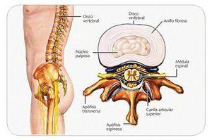 Hernia de disco cervical